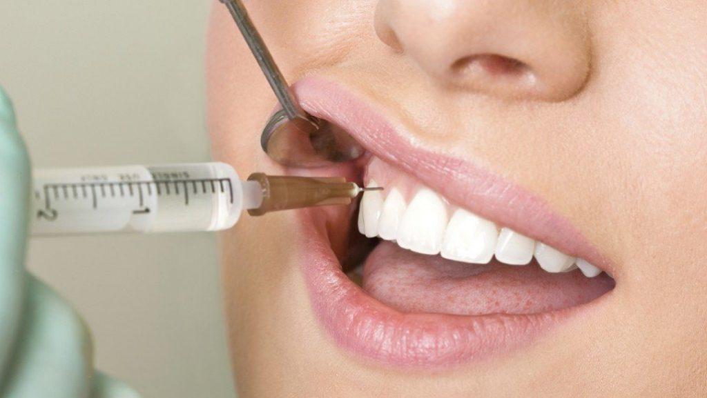 Плазмолифтинг в стоматологии в Томске